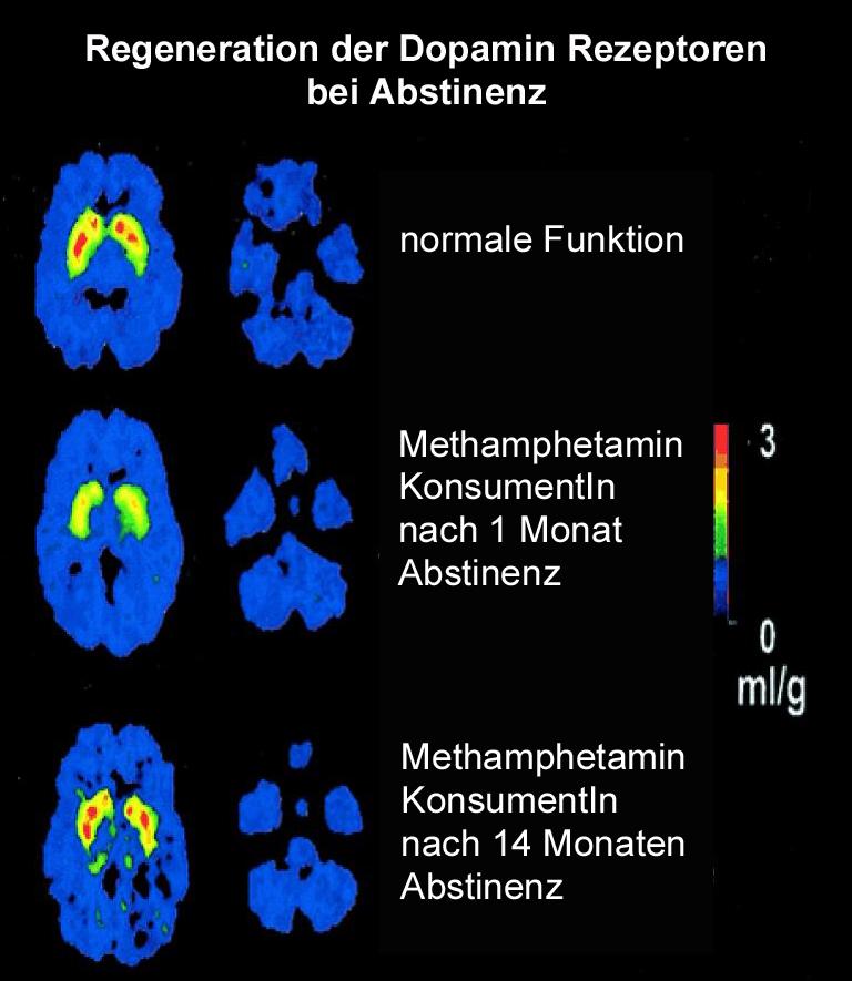 Regeneration Dopamin Rezeptoren bei Abstinenz Kopie